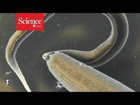 sorbente pentru viermi incubation papillomavirus chez l homme