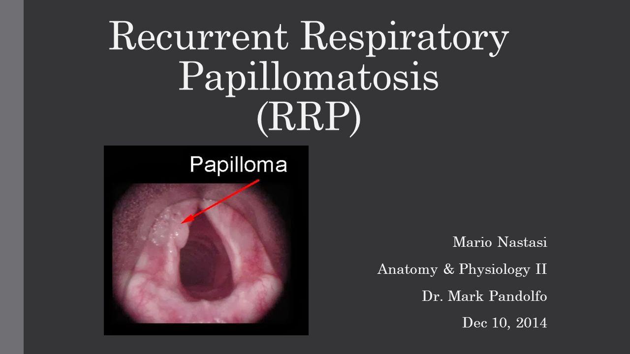 Laryngeal papillomatosis prevalence, Papilloma laryngeal cancer