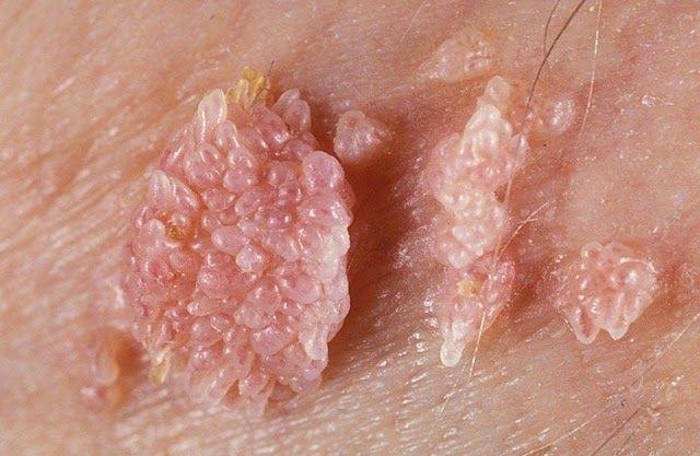 Genital warts without hpv virus.