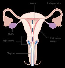endometrial cancer emedicine xifaxan dysbiosis