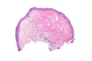 lingual papilloma pathology