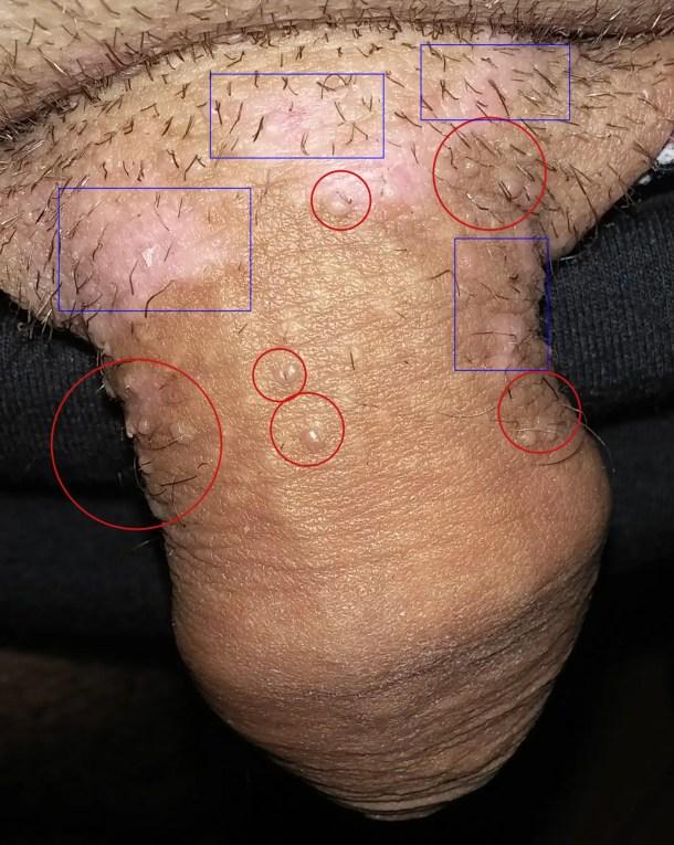 verrue papillomavirus pubis