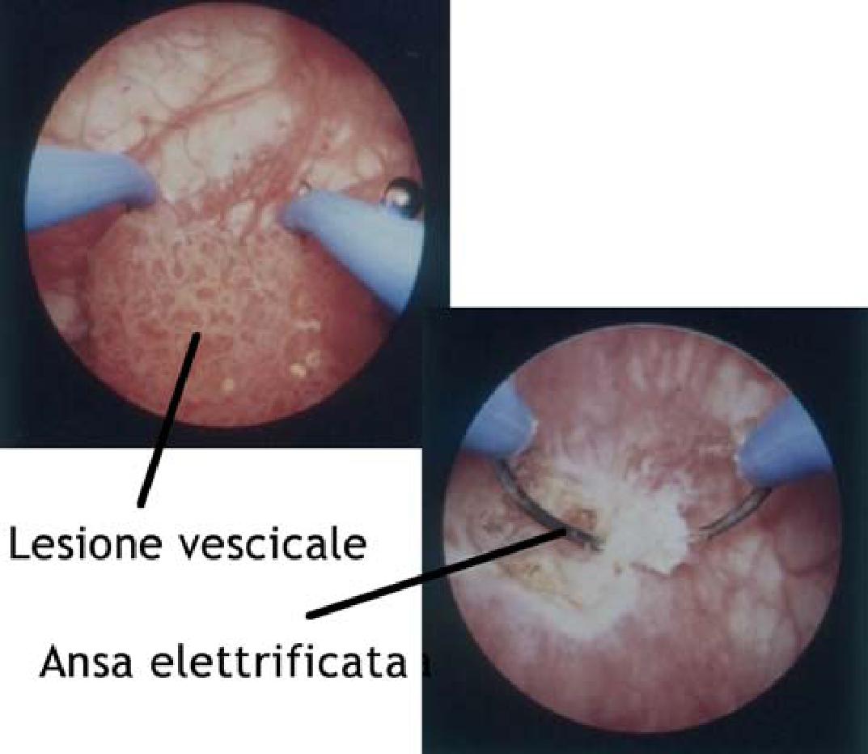 Il papilloma vescicale e maligno Papilloma vescicale terapia