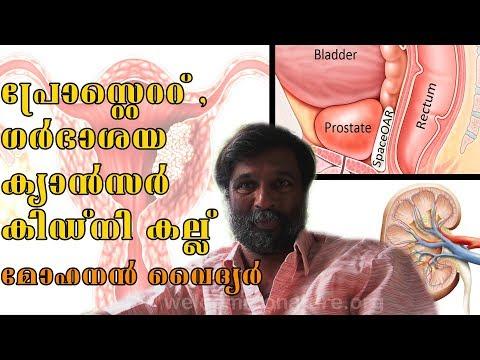 nutriție prin curățarea antiparazitară a organismului mâncărime în anus datorită tratamentului viermilor