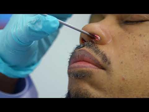 simptomele parazitului giardiei la om