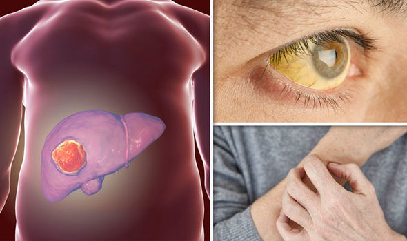 Hepatic cancer review - Surgery for primary hepatocellular carcinoma cancer no hodgkin sintomas