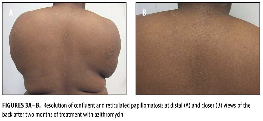 Confluent and reticulated papillomatosis natural treatment Hpv impfung lichen sclerosus