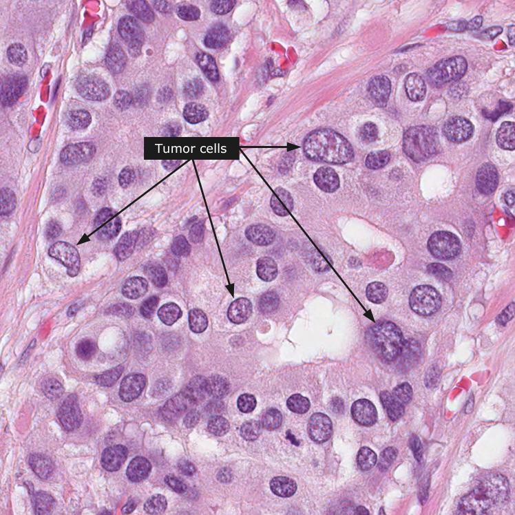 cancer gastric biopsie