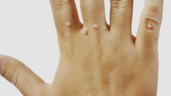tratamentul cu prescripție de vierme curățați și detoxifiați suplimente