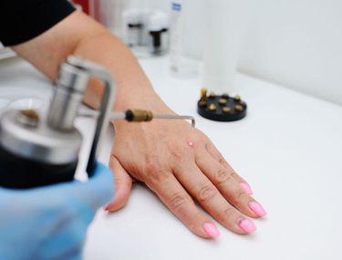 specialist in eliminarea verucilor genitale ovarian cancer guideline