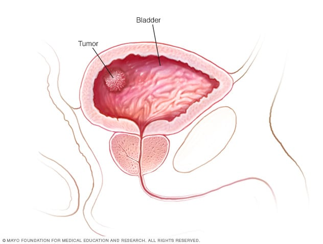 que es bladder cancer unguentul este un măgar al paraziților