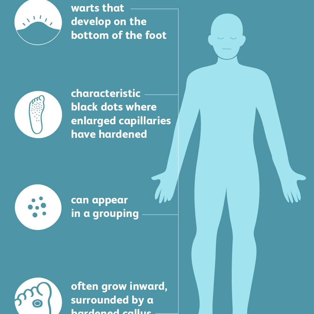 Foot warts disease treatment