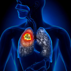 Cancerul pulmonar este agresiv şi evoluează rapid. Care sunt semnele atunci când apar | topvacanta.ro