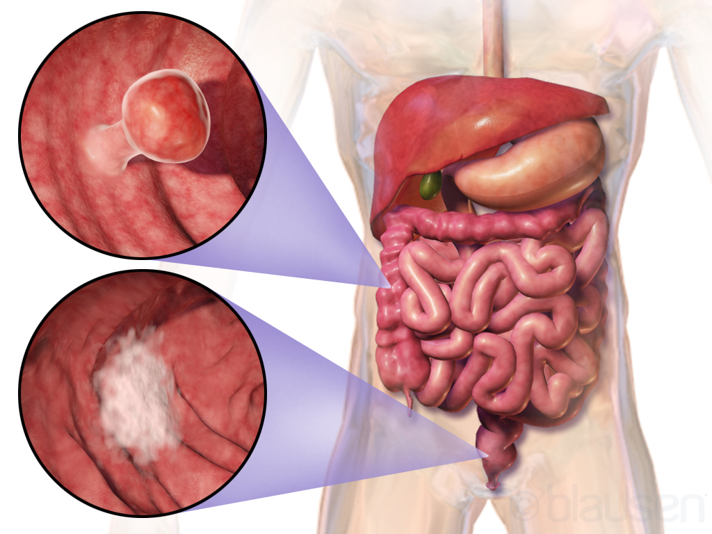 metastatic cancer of the colon human papillomavirus mannern