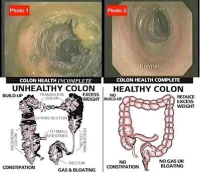 detox colon colonic