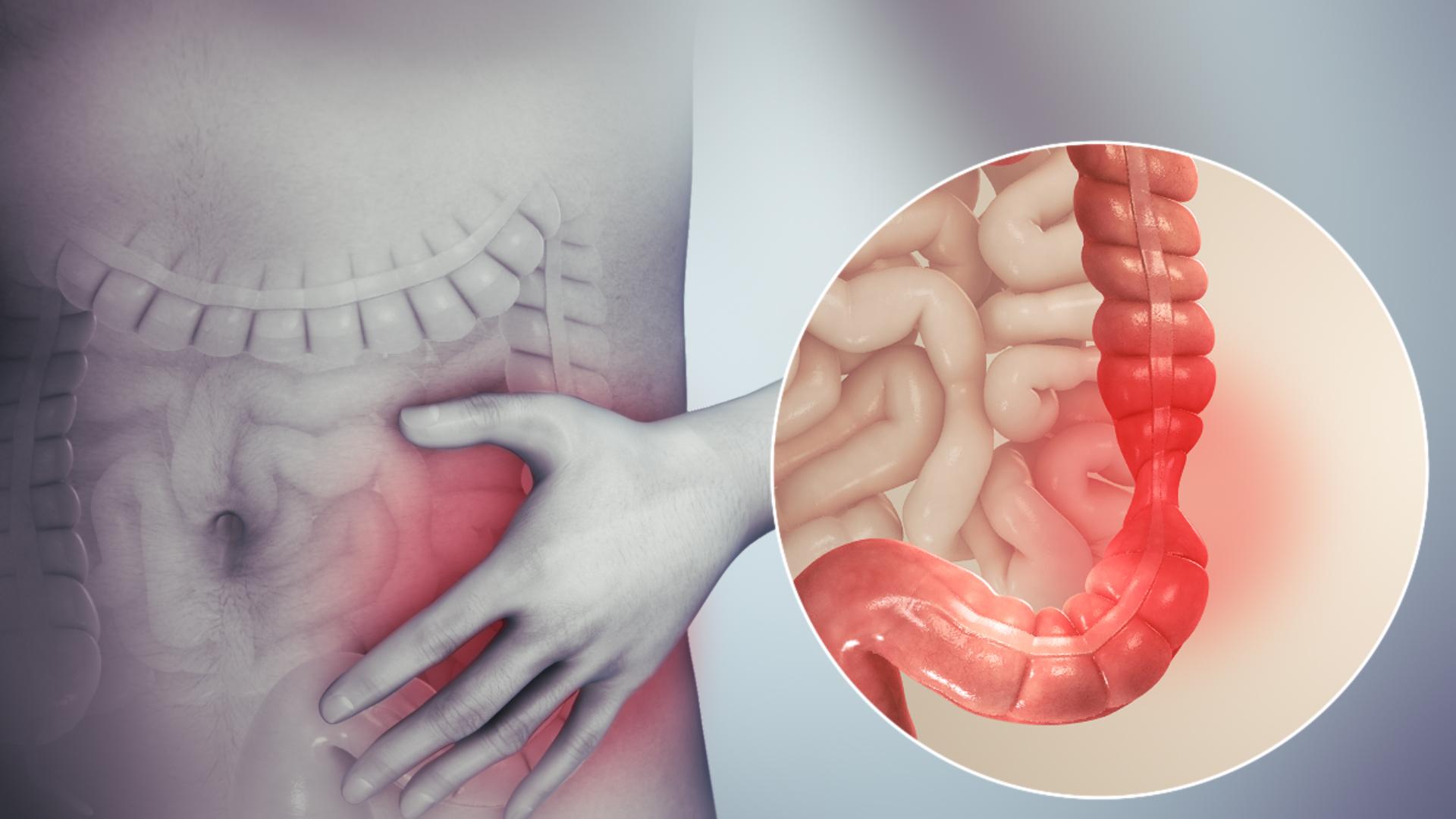 crijevni paraziti kod covjeka simptomi