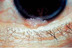 Conjunctival papilloma definition