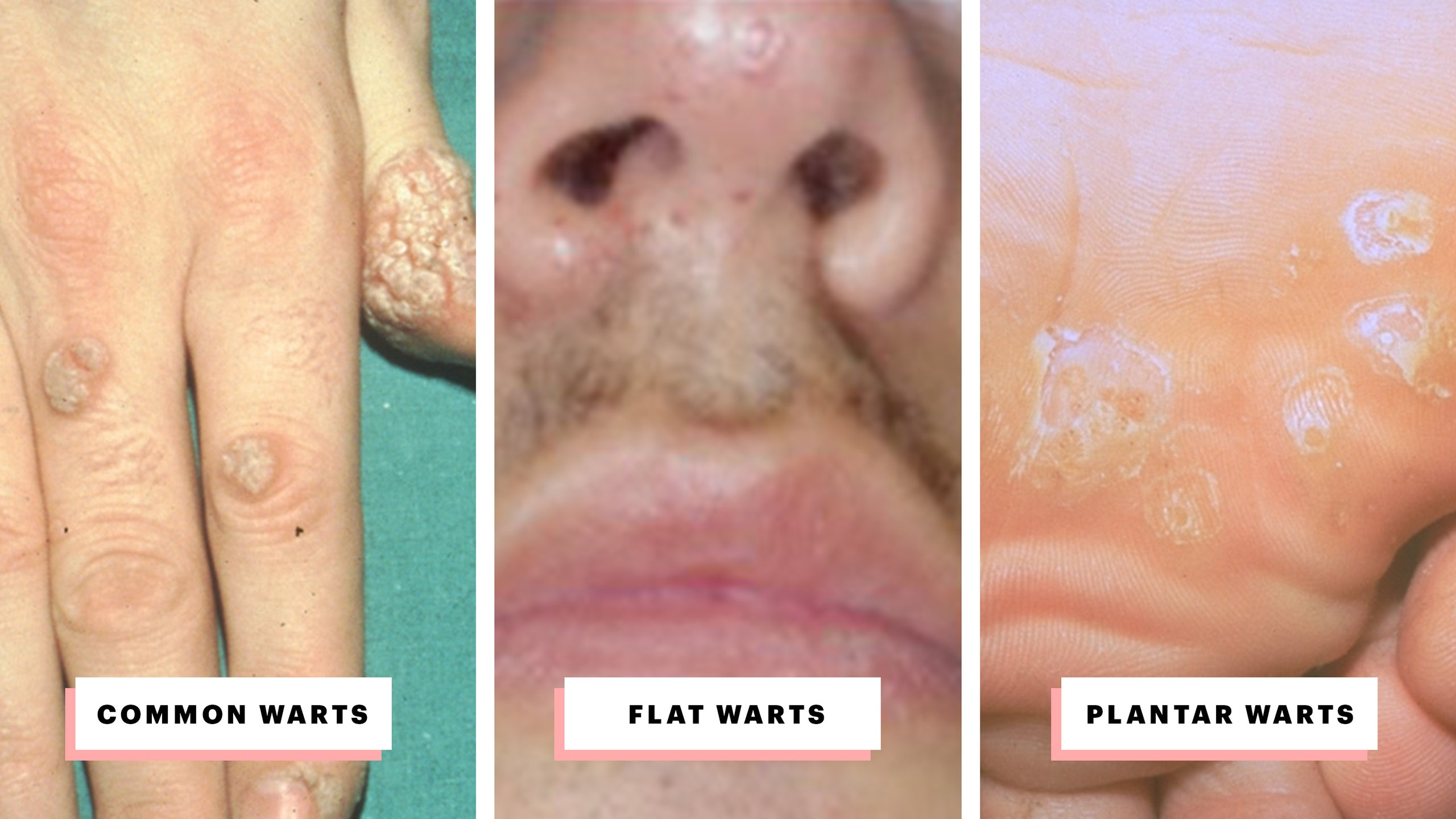 Hpv warts smell