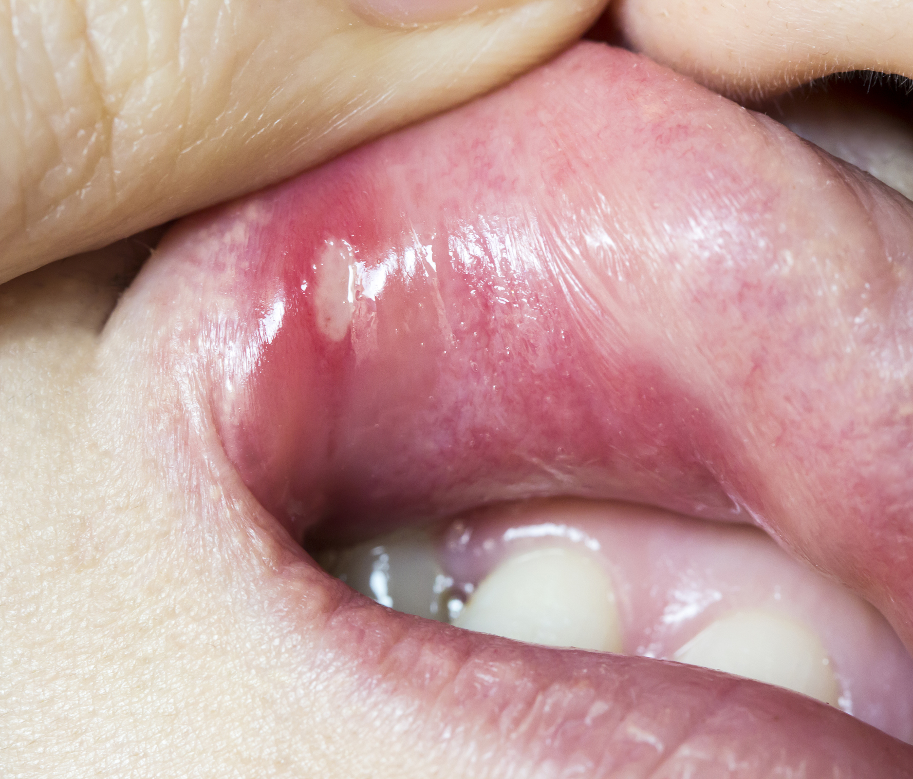 Human papillomavirus symptoms in mouth