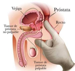 cancer de prostata maligno viermi medicina modernă