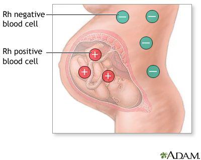 Citomegalovirus IgG - Anticorpi   Medlife