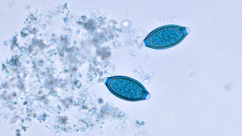enterobius vermicularis forma de transmissao anemie 3 mois apres accouchement