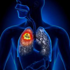 Cancerul bronhopulmonar- de la simptome, diagnostic și tratament