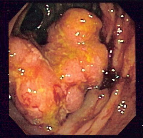 cancerul de colon la femei