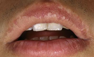 hpv labbro inferiore