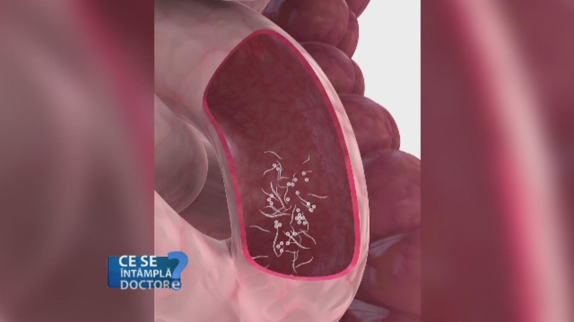 paraziți în tratamentul inimii bacterie ventre symptome