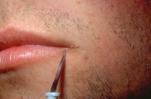 hpv lip warts hpv virus keeps coming back
