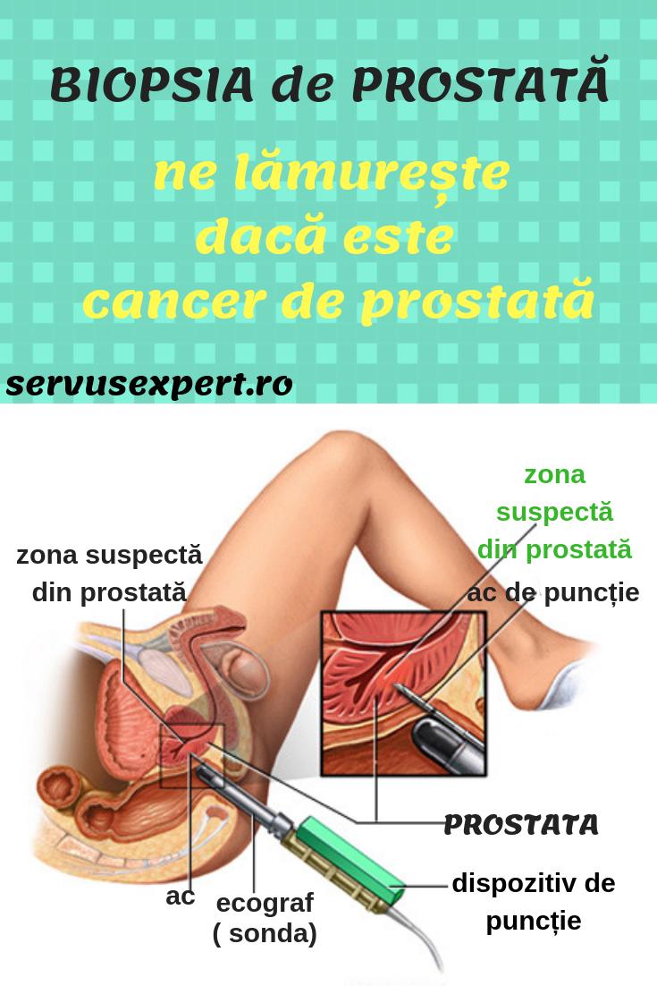 simptome cancer de prostata plasturi detoxifiere kinoki pret
