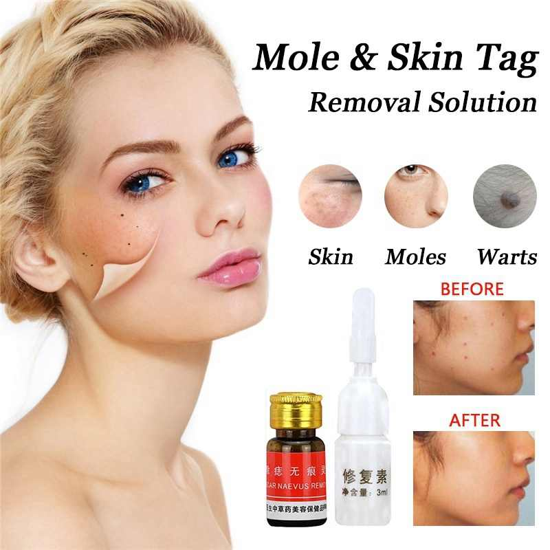 Mouth wart reddit How CBD Oil Impacts the Body dermatite cause