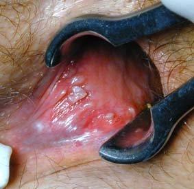viermii sunt infecții comune hpv treatment cdc