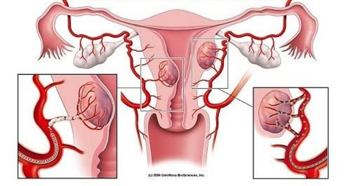 Fibrom uterin: Simptome • Cauze • Tratament Naturist • Puterea Plantelor