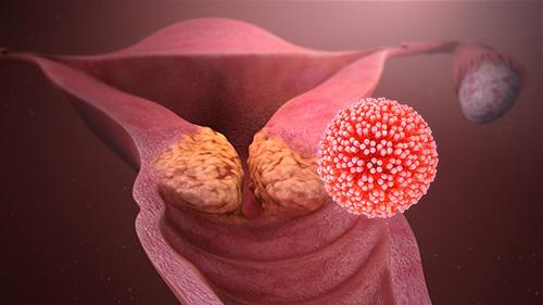 herpes papilloma virus uomo