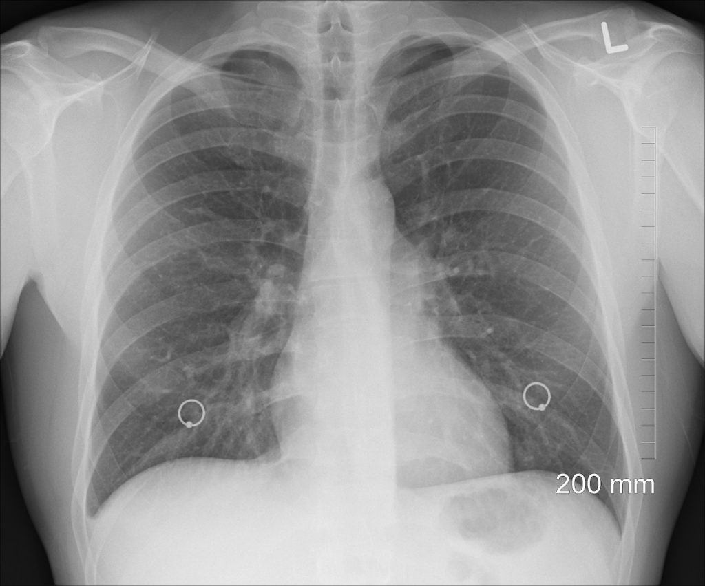 Pneumonia: simptome, cauze si tratament