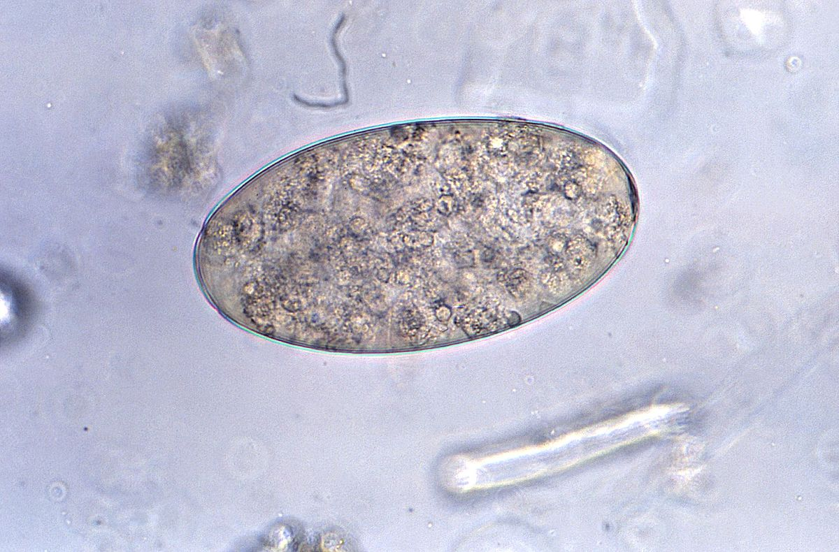 Paraziti helminth ppt. Pinworms uman helminths poze foto