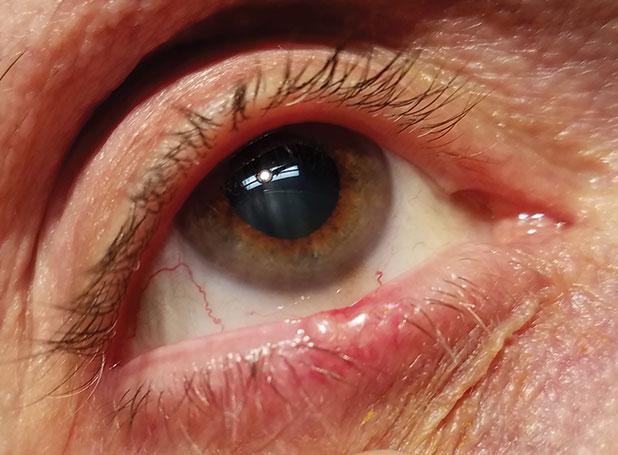 papilloma virus bocca trasmissione