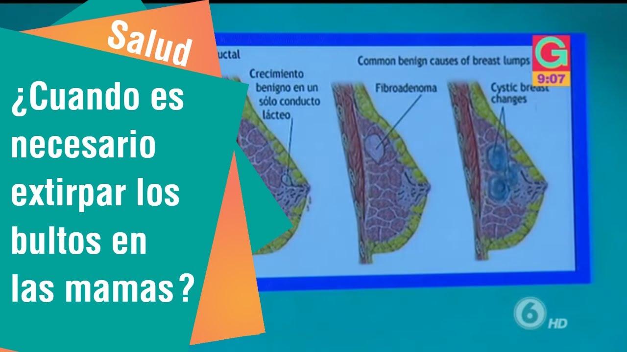 Oxiuroza sau enterobioza