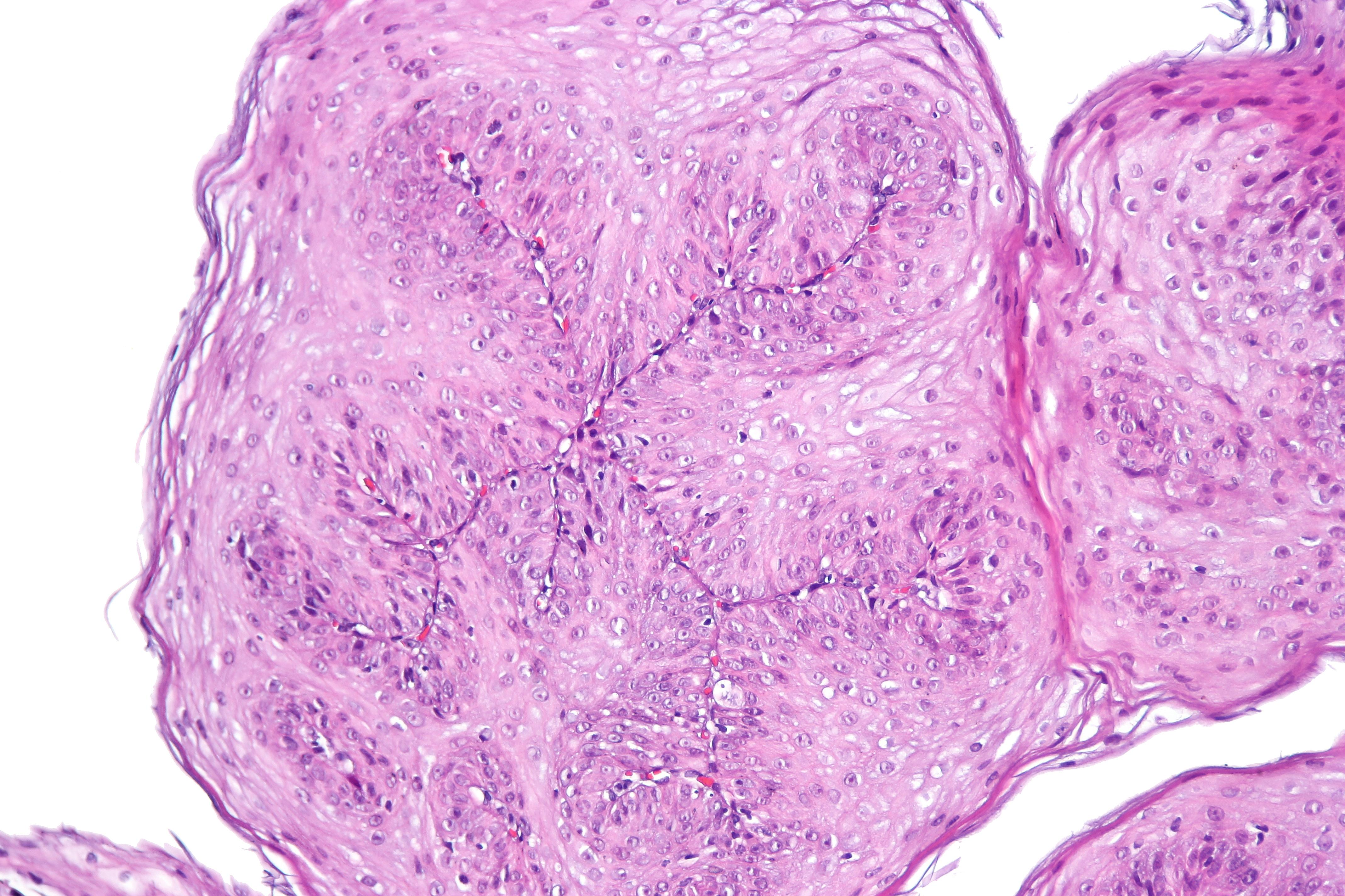 Squamous papilloma esophagus causes, Squamous papilloma esophageal - fotobiennale.ro