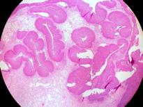 papilloma invertito naso sinusale preparate pentru helminți cu bandă