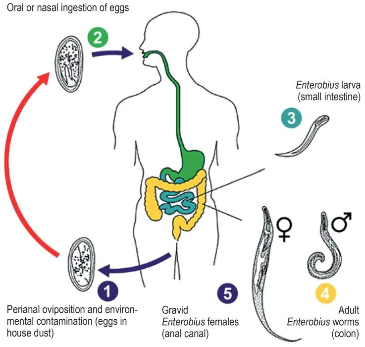 autoinfection of enterobiasis