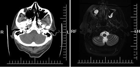 Papilloma sinus cancer. Polipoză de sinus frontal operată prin abord endoscopic transcranian