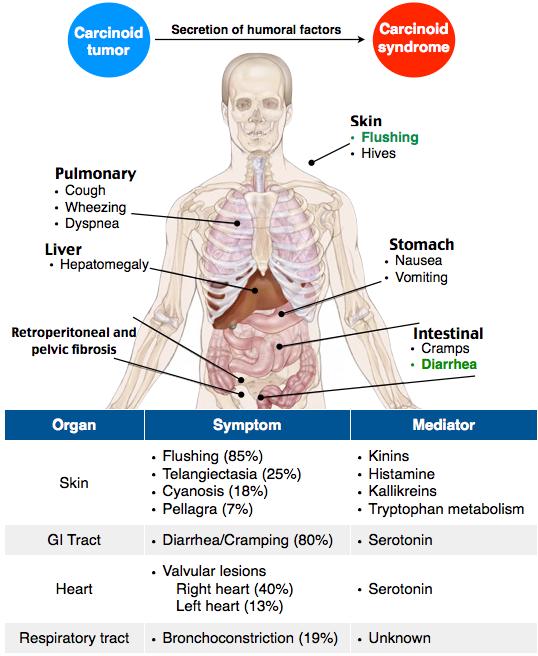 Tumorile neuroendocrine