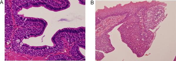 intraductal papilloma salivary gland