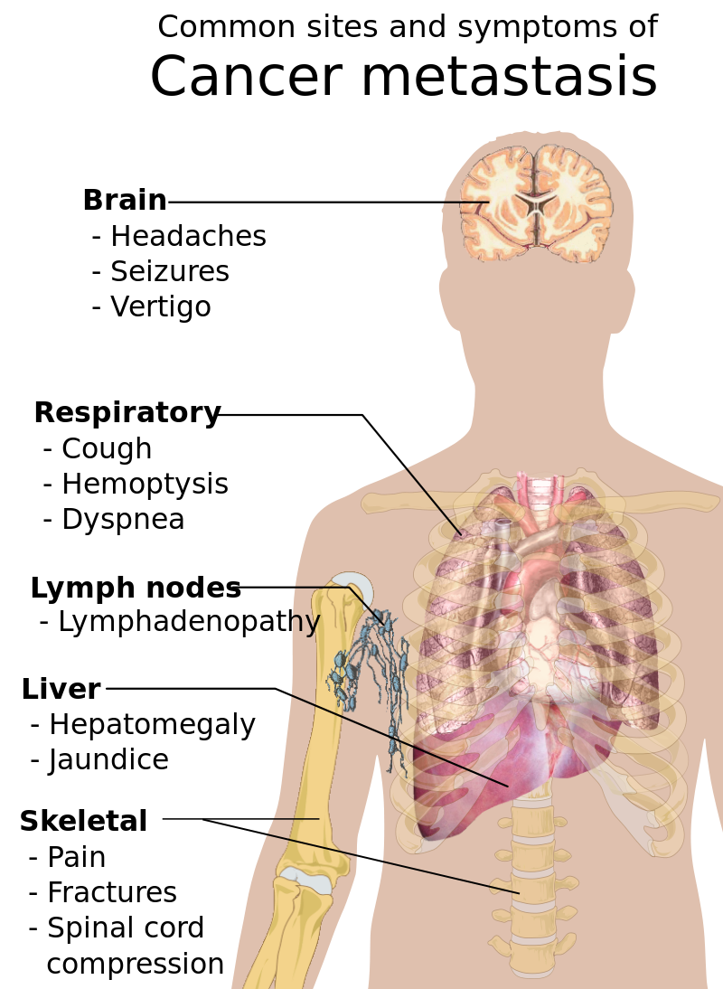 Right hemiplegia and dyspnea: What is the link between?
