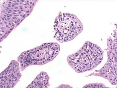 papilloma urothelial cancerul in gat