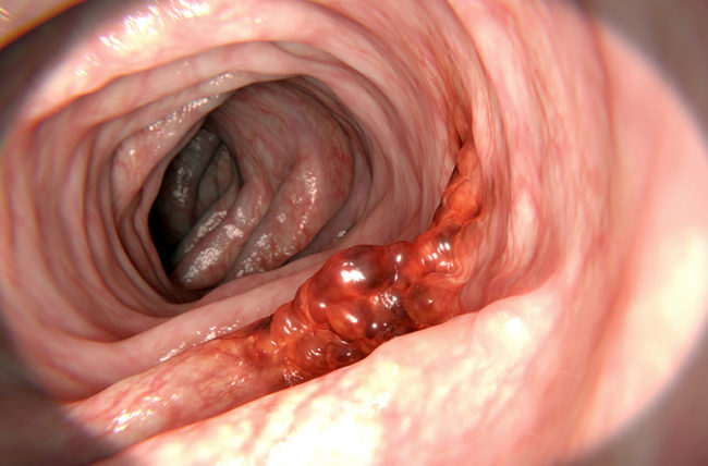 colorectal cancer is