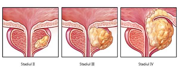 simptome cancer de prostata fonduri în vagin cu condiloame